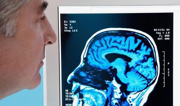 brain-scan-alzheimers-447958