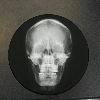Skull X-Ray Glass Coaster