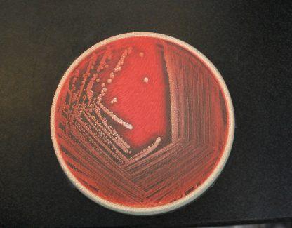 Petri Dish Glass Coaster Bacteria Red