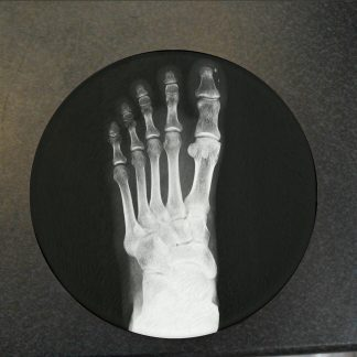 Foot x-ray Glass Coaster