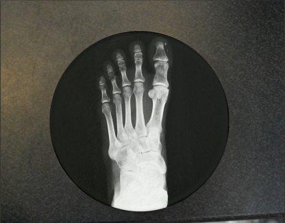 Foot x-ray Glass Coaster